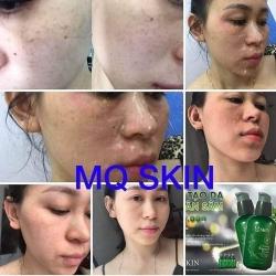 """Thương hiệu MQ Skin có """"lập lờ"""" lừa dối người tiêu dùng hay không?"""