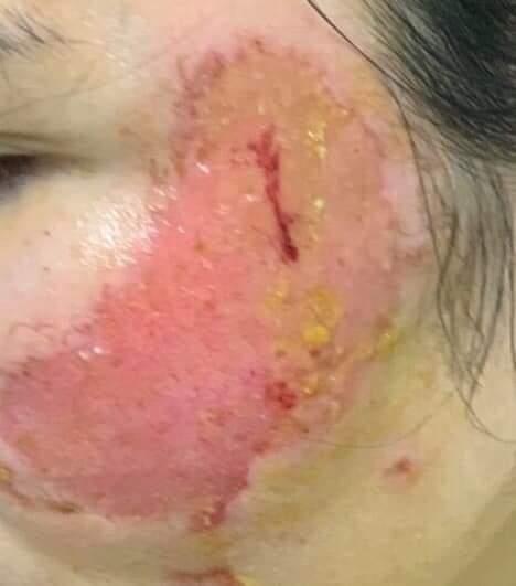 Tin lời cam kết đốt laser chữa rám má của spa người phụ nữ nhận cái kết đắng