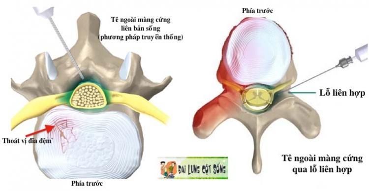 phuong phap moi dieu tri dau cot song khong can phau thuat