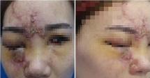 Tiêm filler mù mắt và những nỗi hận khi chọn nhầm cơ sở thẩm mỹ chui
