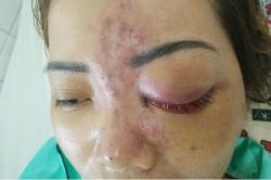 Báo động: Liên tục có các ca biến chứng do tiêm filler tại cơ sở chui