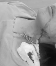 Ngã xe đạp điện cô gái bị hàng rào dây thép gai mắc vào cổ