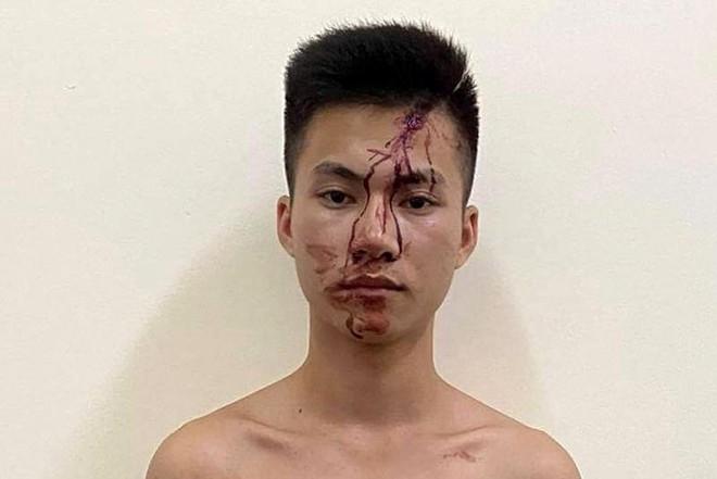 Nam thanh niên dùng dao đâm chết bạn tại chỗ ở quán bi-a