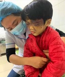 Hải Dương: Khởi tố người mẹ bạo hành con gái 6 tuổi ở Cẩm Giàng