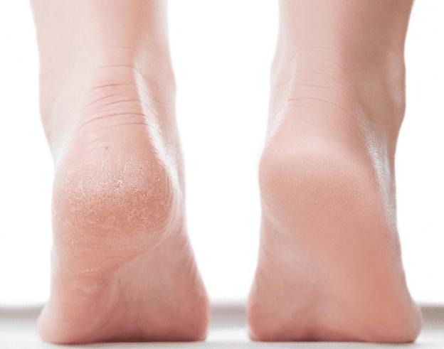 Chữa lành gót chân khô và nứt nẻ theo lời khuyên của chuyên gia