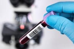 Có cần làm xét nghiệm kháng thể sau tiêm 2 mũi vaccine Covid-19?