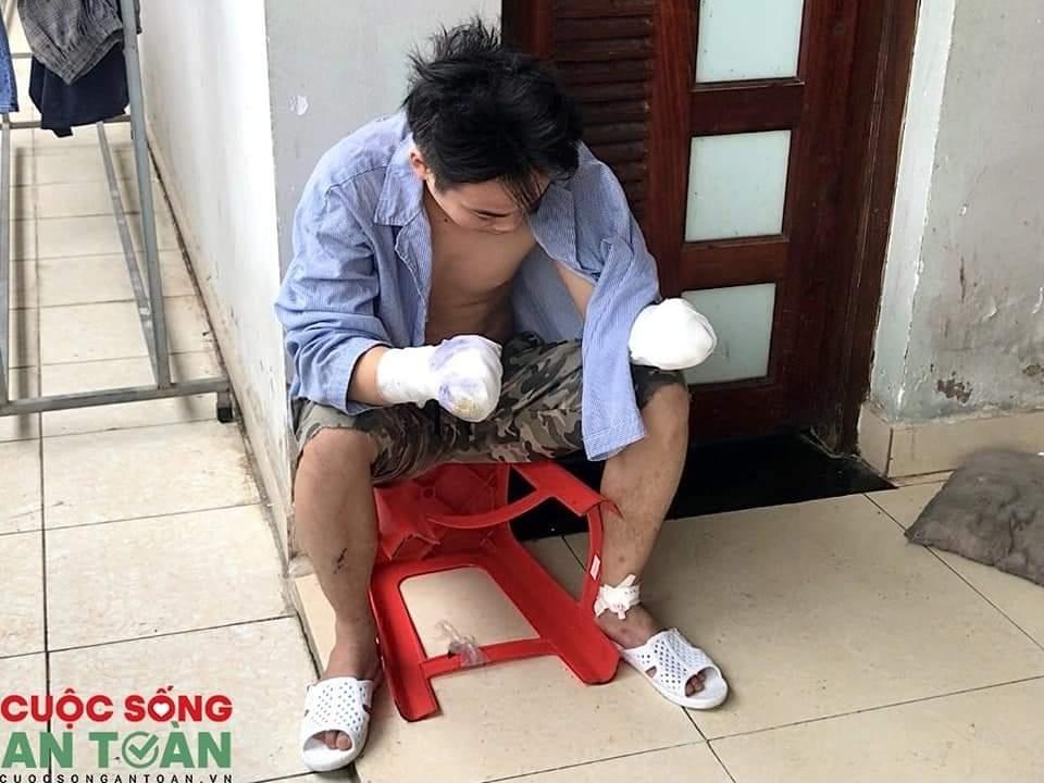 Công nhân Công ty TNHH Seojin Việt Nam bị dập nát hai bàn tay khi đang làm việc