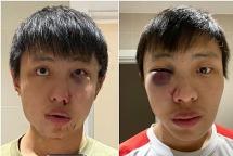 Du học sinh ở Anh bị đánh và kỳ thị vì virus corona