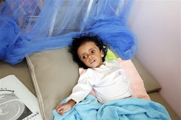 Việt Nam kêu gọi quốc tế chung tay ngăn chặn nạn đói ở Yemen
