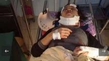 Quảng Bình: Người đàn ông đánh vợ nguy kịch rồi ra vườn treo cổ tự tử