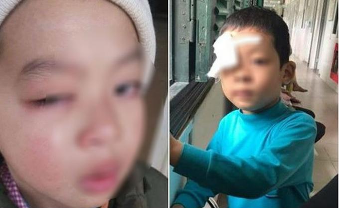Cháu M đã được phẫu thuật mắt, tuy nhiên theo bố cháu tình hình không mấy khả quan