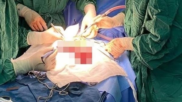 Cắt khối u máu trong gan cứu bé 14 ngày tuổi