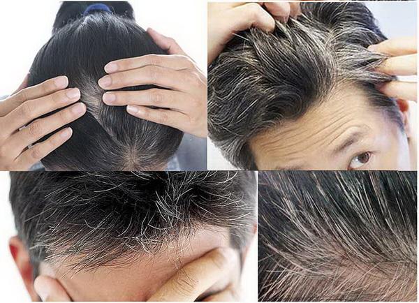 Đậu tương chữa tóc bạc sớm.