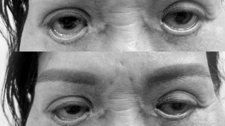 Mắt trợn ngược sau cắt mí ở spa