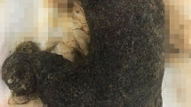 Khối u tóc to như quả bí đao trong bụng bé gái 11 tuổi