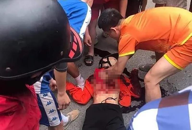 Một số người vội cấp cứu cho nam sinh nhưng do bị thương tích nặng nên đã không qua khỏi