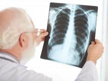 10 biến chứng nguy hiểm của bệnh Covid-19