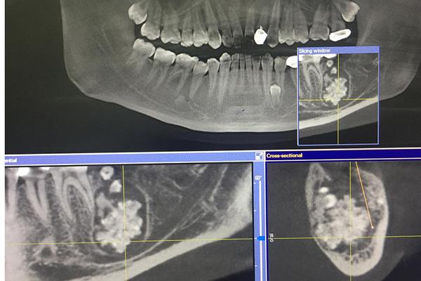 Bác sĩ gắp răng lúc nhúc trong miệng nam thanh niên Hà Nội