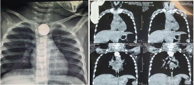 Bé 22 tháng tuổi viêm phổi nặng, rò khí thực quản vì nuốt phải pin