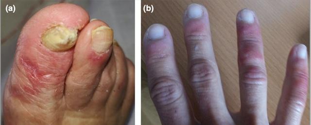 5 dấu hiệu trên da cảnh báo bạn có nguy cơ mắc Covid-19 - 1