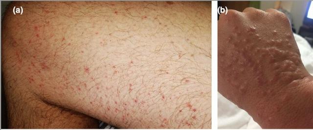 5 dấu hiệu trên da cảnh báo bạn có nguy cơ mắc Covid-19 - 2