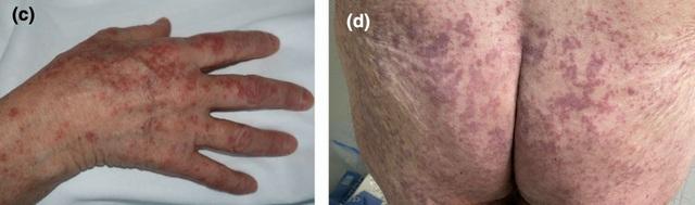 5 dấu hiệu trên da cảnh báo bạn có nguy cơ mắc Covid-19 - 3