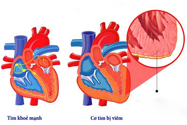 Sau 2 ca tử vong ở Hà Nội, bệnh viêm cơ tim nguy hiểm thế nào?