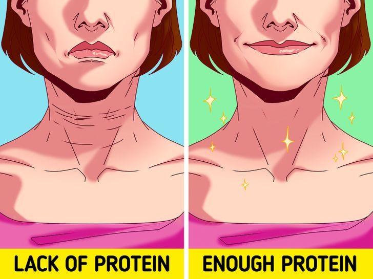 Sai lầm 6: Bổ sung thiếu protein ngăn cản các tế bào da tự tái tạo Nếu bạn hạn chế lượng calo và ăn ít protein, da của bạn sẽ mất độ đàn hồi, từ đó dẫn đến nhiều nếp nhăn hơn. Việc thiếu protein cũng ngăn da tự tái tạo. Bạn có thể điều trị collagen nhưng không thể hiệu quả bằng việc cung cấp đủ protein ngay từ đầu.