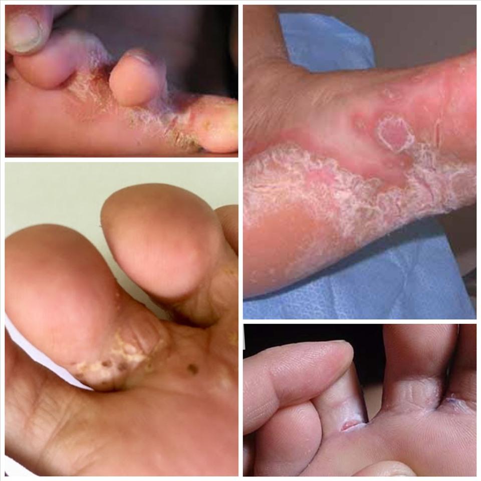 Những điều quan trọng cần biết để phòng tránh bệnh da liễu mùa lũ