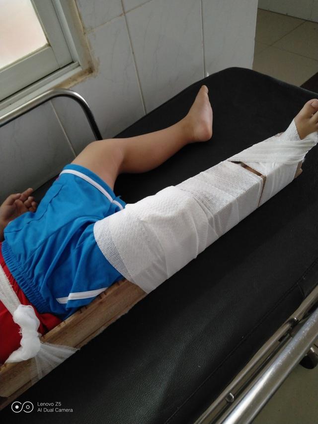 """Bé 4 tuổi bị gãy chân ở trường, cô giáo nói do """"chân quấn vào bàn"""""""