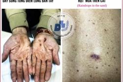 Cảnh báo nhiễm độc thạch tín gây ung thư da mà không hề hay biết