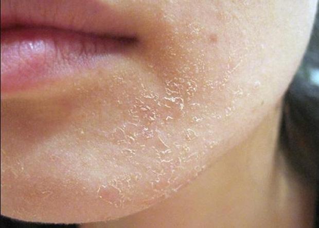 Khô da dễ gây biến chứng trầm trọng vào mùa đông